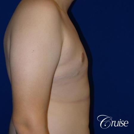 young boy with gynecomastia during puberty gets surgery -  After Image 4