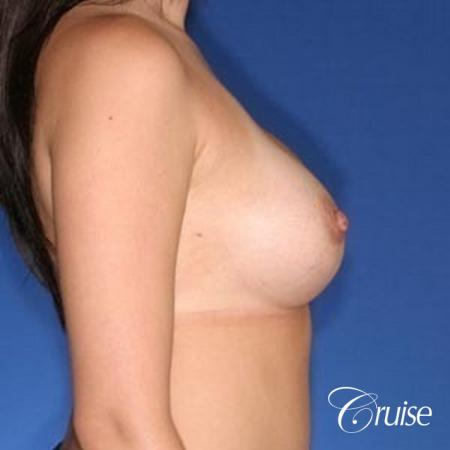 best surgeon for breast revision capsular contracture -  After Image 4