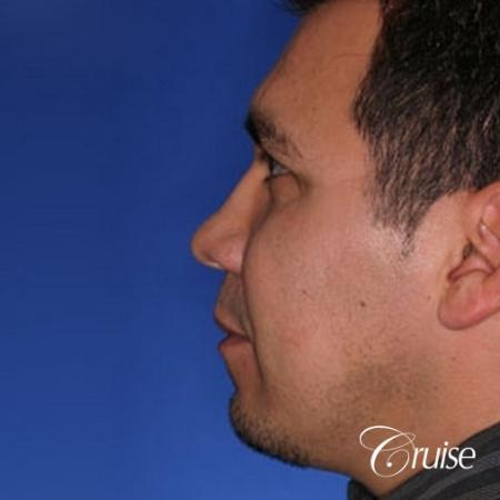 chin augmentation orange county - Before and After Image 2
