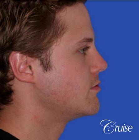 young male with best chin augmentation -  After Image 2