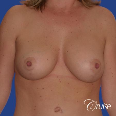 best breast lift anchor with silicone implants on 40 year old woman -  After Image 1
