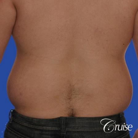 male liposuction abdomen flanks with Gynecomastia - Before Image 2
