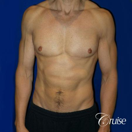 Type 3 Skin Laxity Gynecomastia with Nipple Elevation - After 1