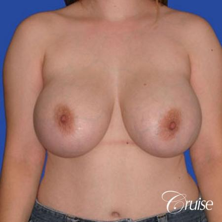 best breast reduction pictures with saline implants - Before Image 1