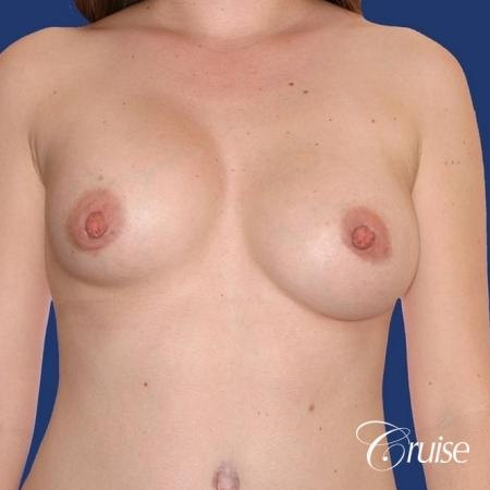 best surgeon for breast revision capsular contracture - Before Image 1