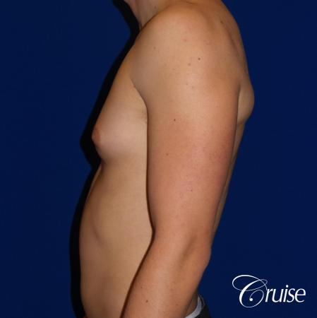 Best moderate gynecomastia on male adult - Before and After Image 2