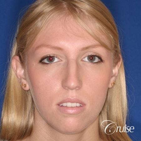 young female with large anatomic chin implant - Before Image 1
