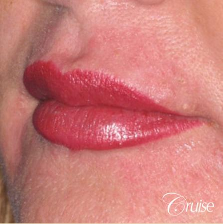 best lip augmentation with juvaderm -  After Image 2