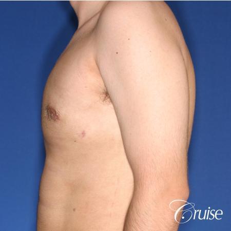 moderate gynecomastia puffy nipple -  After Image 2