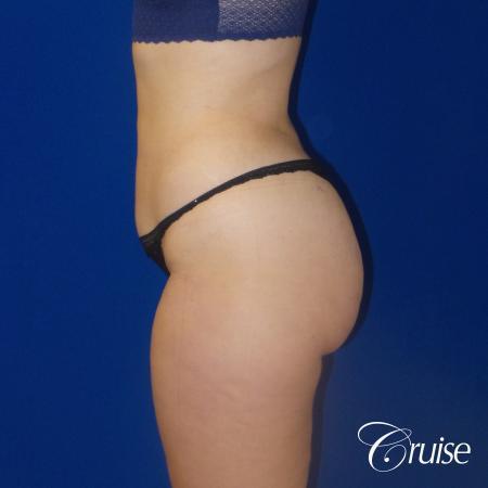 Liposuction Flanks & Abdomen - After