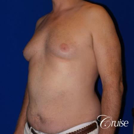 gynecomastia surgery results - Before 2