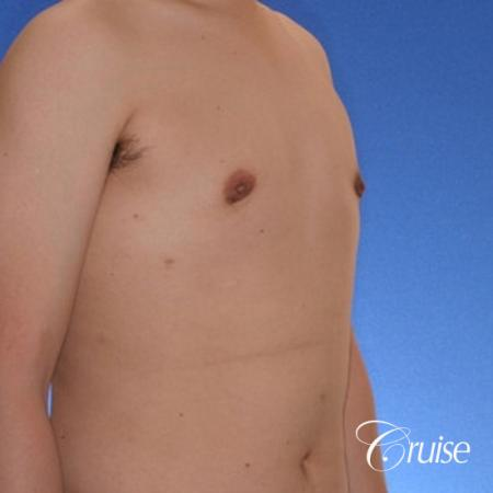 young male with mild gynecomastia surgery for puffy nipple -  After 4