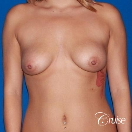 best breast lift scars on young girl with saline implants - Before Image 1
