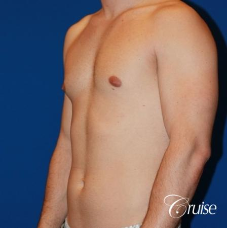 32 yo with Gynecomatia and Puffy Nipple - Before Image 3