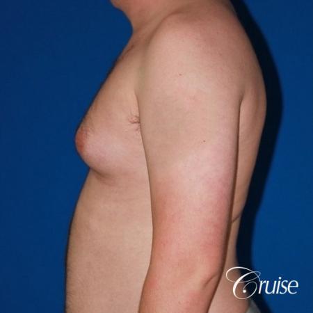 asymmetric gynecomastia moderate - Before Image 3