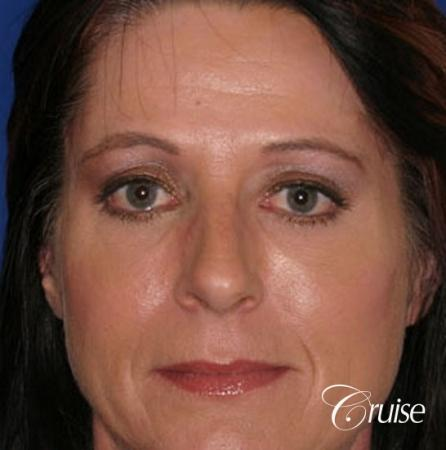 best chemical peel results - After Image