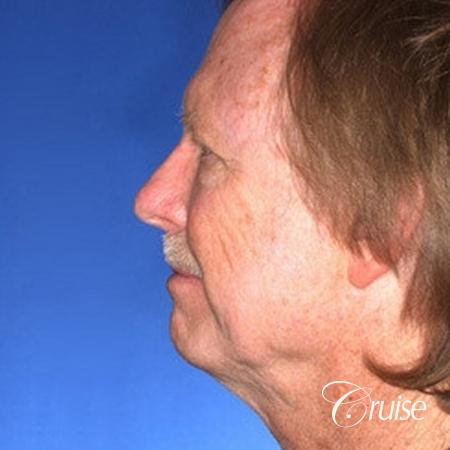 62 yr old with medium square chin augmentation - Before Image 2