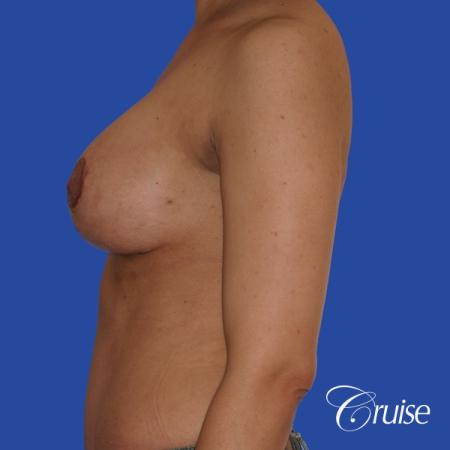 best scars for  breast lift anchor saline in Newport Beach, Orange County -  After Image 2