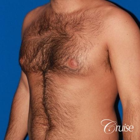 moderate gynecomastia on adult - Before and After Image 3