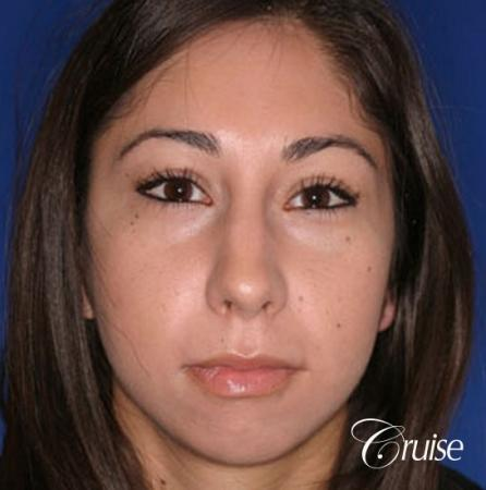 anatomic chin implant with top plastic surgeon in Newport Beach - Before Image 1