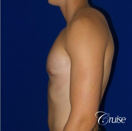 Teenage Gynecomastia -Areola Incision - After Image 5