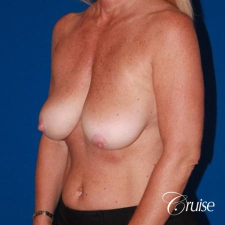 Breast Lift - Saline Augmentation - Before Image 2