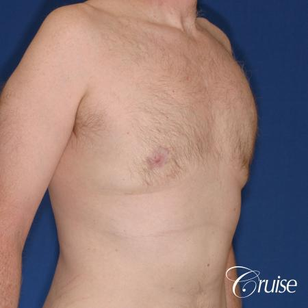 best donut lift with gynecomastia surgery -  After Image 4