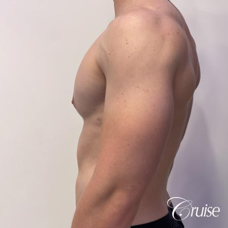 gynecomastia with puffy nipples -  After Image 2
