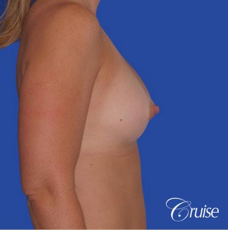 saline implant rupture newport beach plastic surgeon -  After Image 2