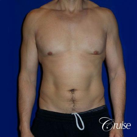 Type 3 Skin Laxity Gynecomastia with Nipple Elevation - Before 1