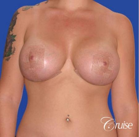 best before and after of silicone breast lift anchor in Newport Beach -  After Image 1