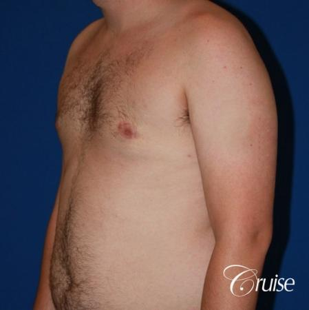 asymmetric gynecomastia moderate -  After Image 2