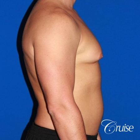 body builder with Gynecomastia puffy nipple - Before and After Image 5