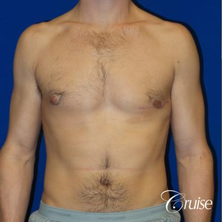 Unilateral gynecomastia condition photos -  After Image 1