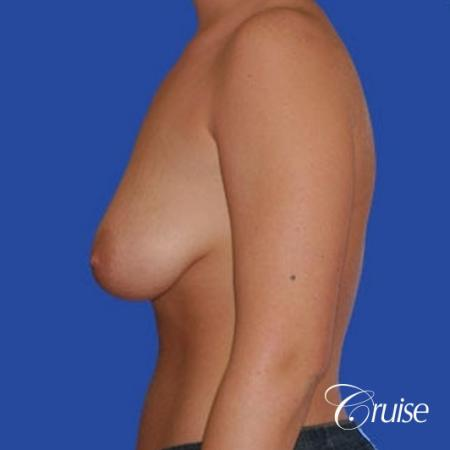 best before and after of silicone breast lift anchor in Newport Beach - Before and After Image 3