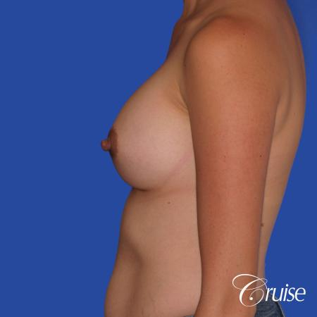 Breast Augmentation: Patient 42 - After Image 2