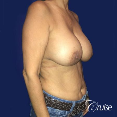 Best Breast reduction results and recovery - Before Image 5
