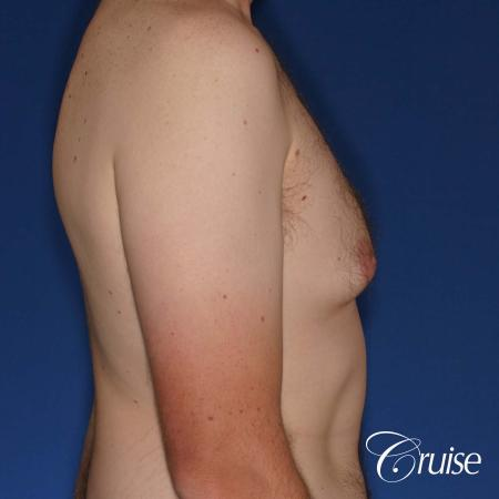 adult male with moderate gynecomastia gets donut lift - Before Image 4