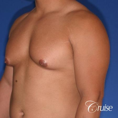 donut lift gynecomastia moderate adult - Before Image 2