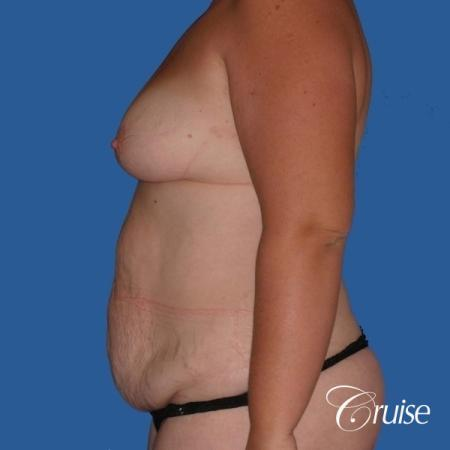 best mommy makeover and breast lift anchor results - Before Image 2