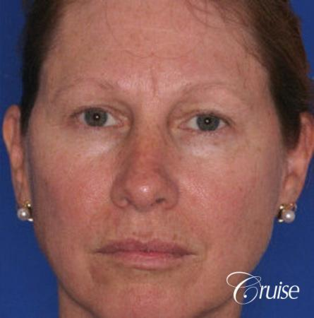 best chemical peel in newport beach - Before Image