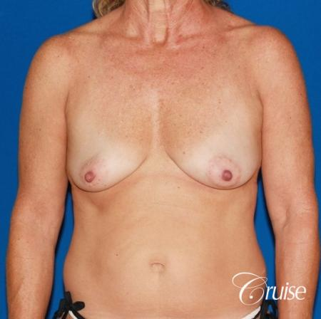 best high profile silicone breast lift 425cc - Before Image 1
