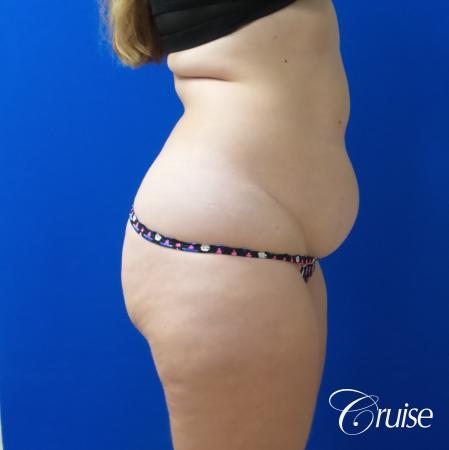Liposuction Flanks & Abdomen - Before Image 4