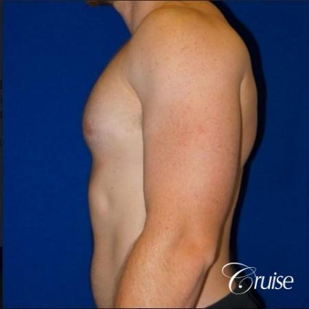Dr. Cruise gynecomastia surgery photos -  After Image 5