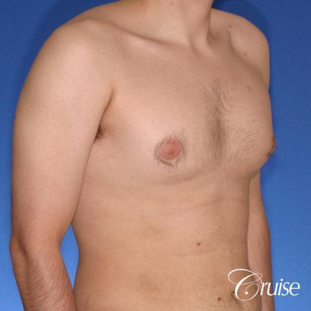 moderate gynecomastia puffy nipple - Before Image 4