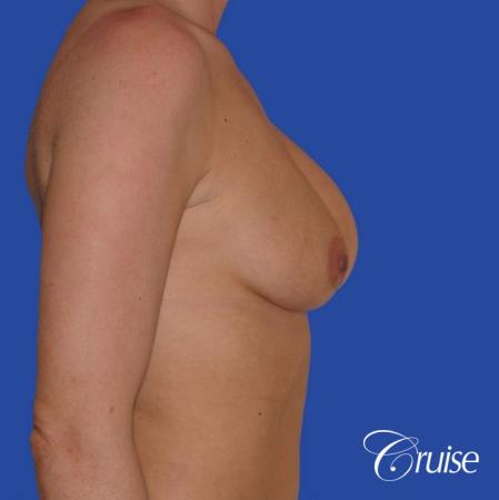 breast revision with silicone implant rupture - Before and After Image 3