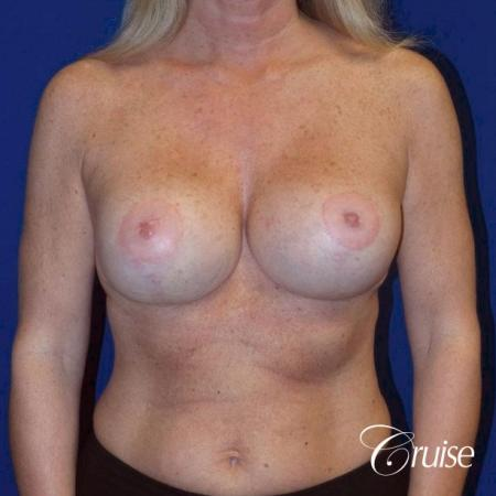 Breast Lift - Saline Augmentation - After Image 1