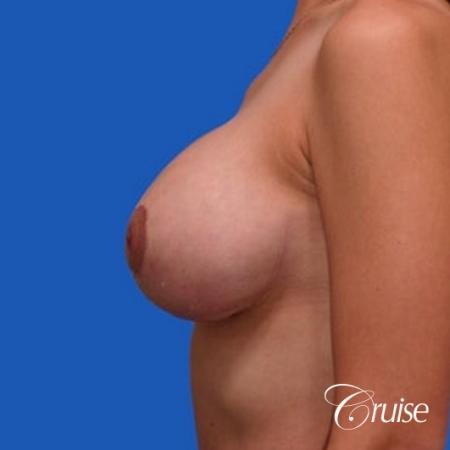 best results for breast lift anchor with top plastic surgeon -  After Image 2