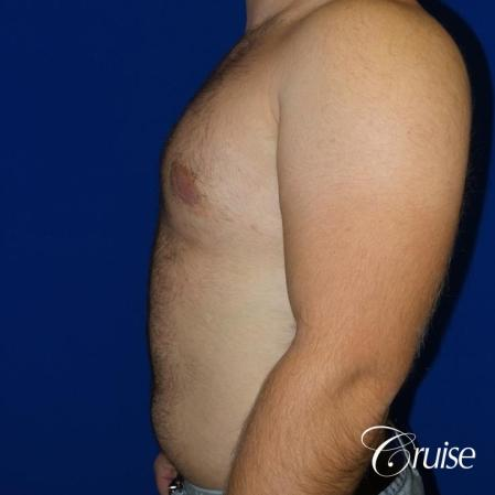 best gynecomastia results -  After Image 3