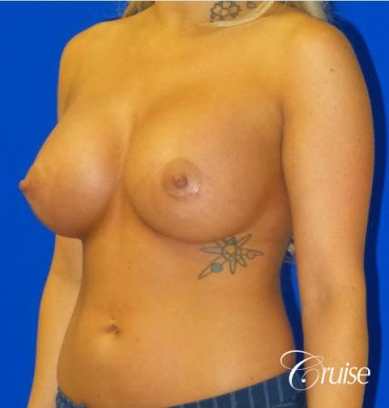 Breast Augmentation Irvine CA - After Image 3